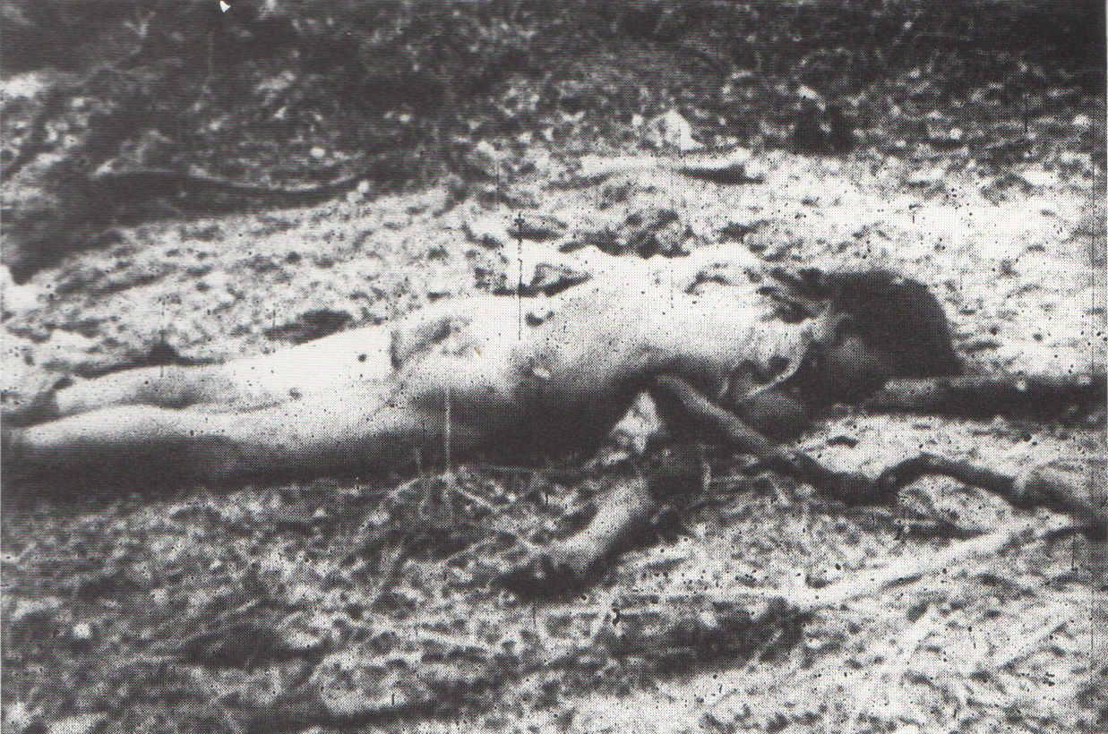American soldier with a severed hand – a photo censored for the most part of the war. (photo)